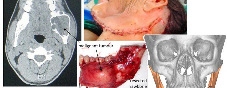 Personalizowane implanty dorekonstrukcji żuchwy